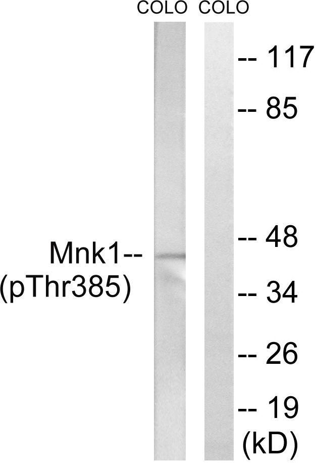 Phospho-MNK1 (Thr385) Antibody (PA5-39796) in Western Blot