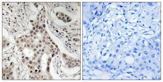 Phospho-SRC2 (Ser736) Antibody (PA5-39797)