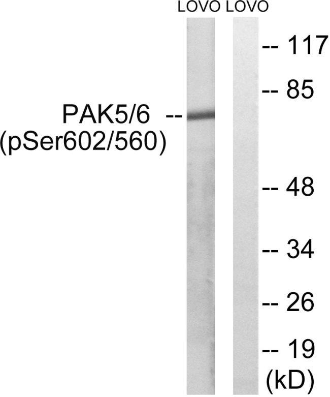 Phospho-PAK5/PAK6 (Ser602, Ser560) Antibody (PA5-39804)