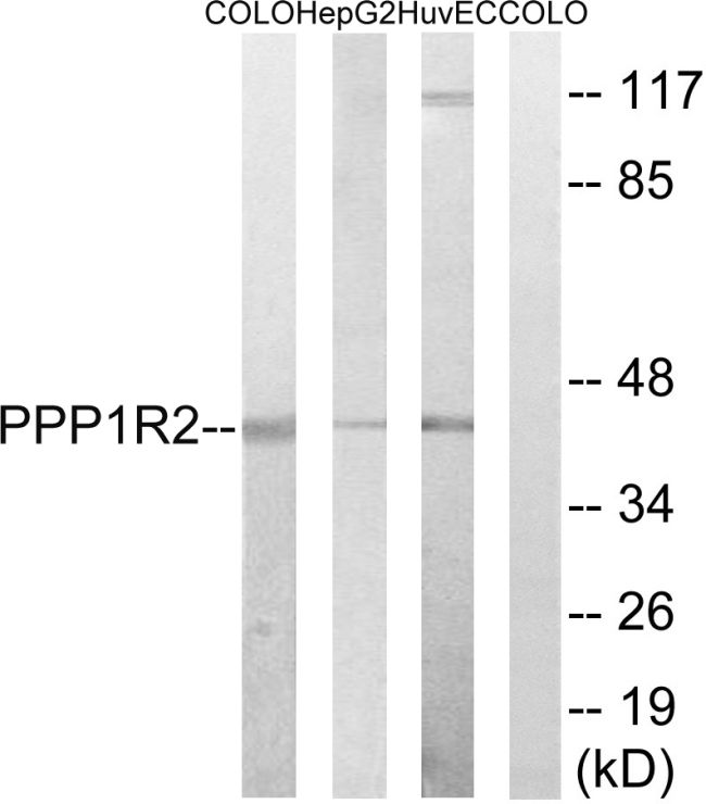 PPP1R2 Antibody (PA5-39805)