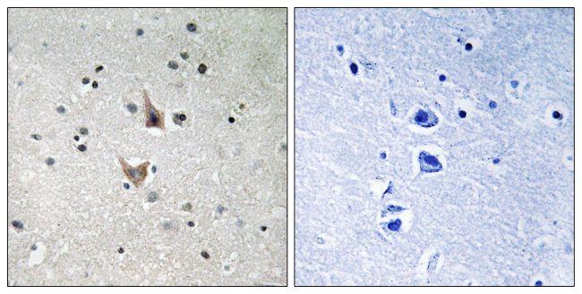 Phospho-PSEN1 (Ser357) Antibody (PA5-39806) in Immunohistochemistry (Paraffin)