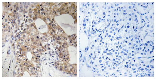 Phospho-SPHK2 (Thr614) Antibody (PA5-39812)