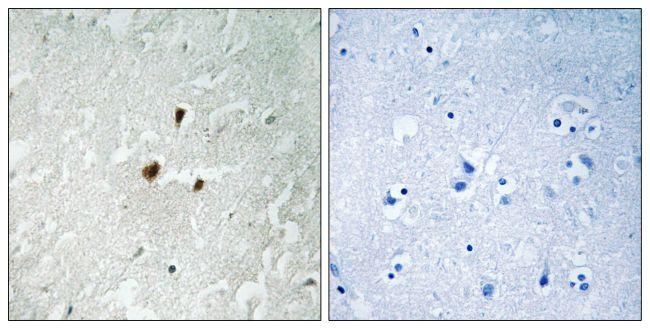 Phospho-RRN3 (Ser649) Antibody (PA5-39814) in Immunohistochemistry (Paraffin)