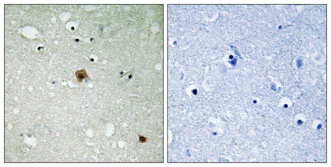 Phospho-TOP2A (Ser1525) Antibody (PA5-39816) in Immunohistochemistry (Paraffin)