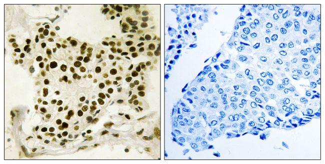 Phospho-UBF-1 (Ser484) Antibody (PA5-39820)