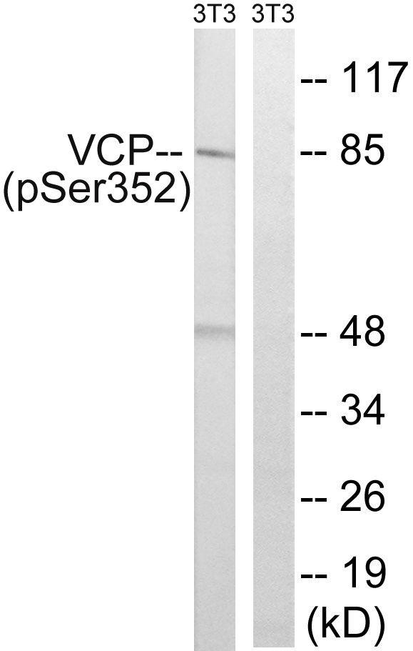 Phospho-VCP (Ser352) Antibody (PA5-39821)