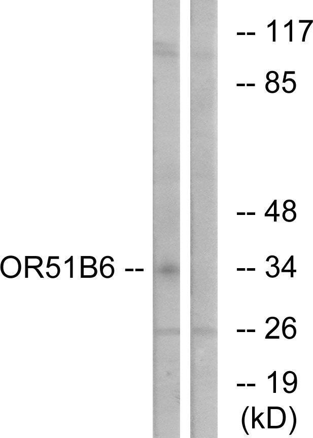 OR51B6 Antibody (PA5-39822) in Western Blot