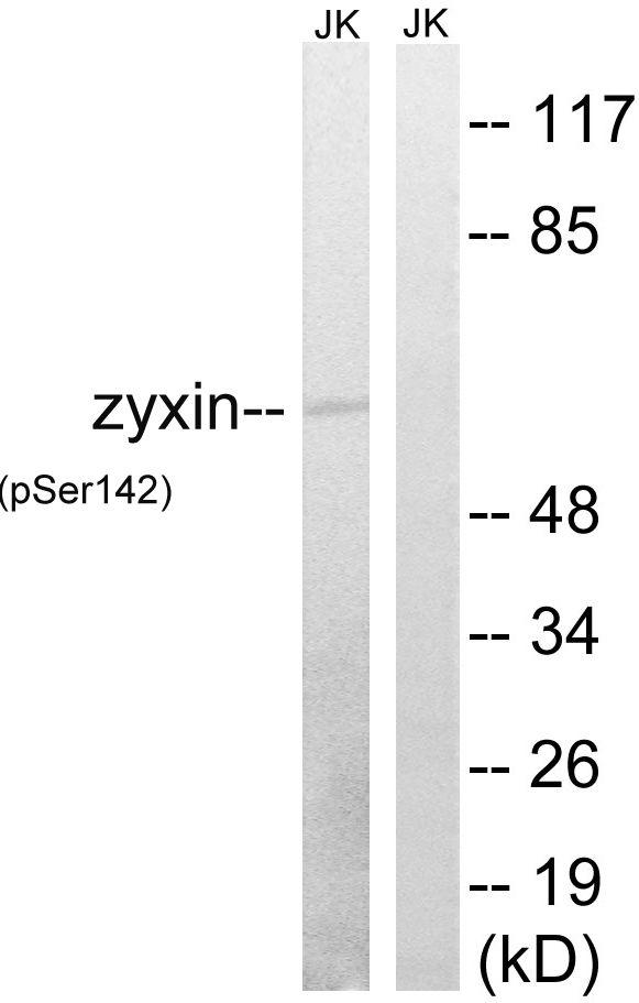 Phospho-Zyxin (Ser142) Antibody (PA5-39823)