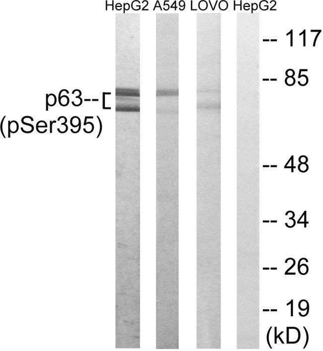 Phospho-p63 (Ser395) Antibody (PA5-39827)