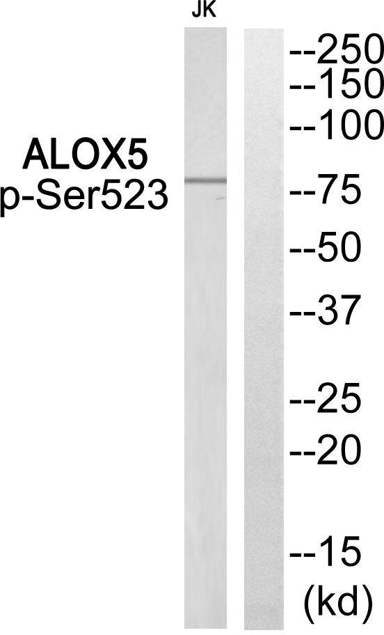 Phospho-ALOX5 (Ser523) Antibody (PA5-39830)