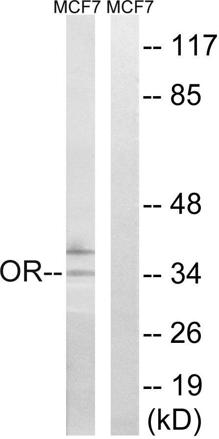 OR51H1P Antibody (PA5-39831)