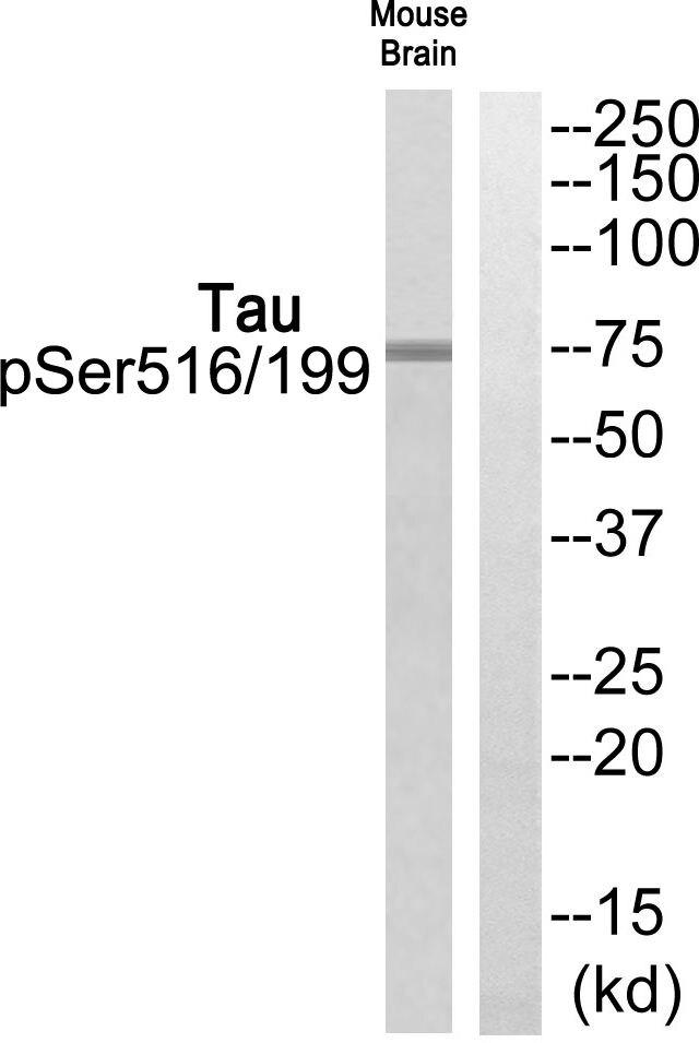 Phospho-Tau (Ser199, Ser516) Antibody (PA5-39834)