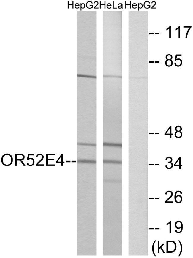 OR52E4 Antibody (PA5-39835) in Western Blot