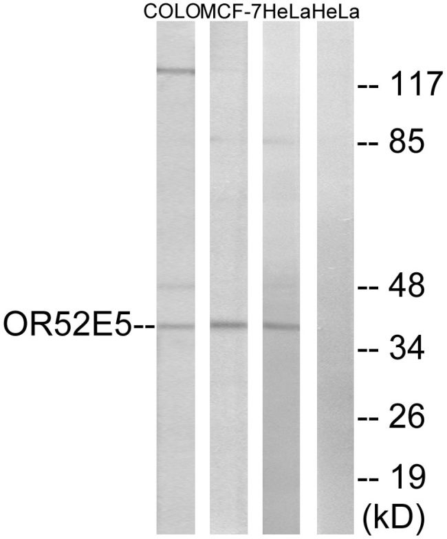 OR52E5 Antibody (PA5-39839)