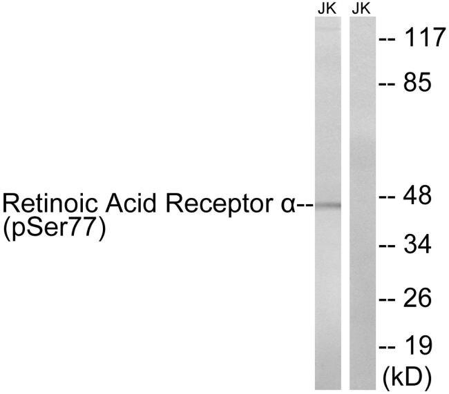 RARA Antibody (PA5-39870) in Western Blot