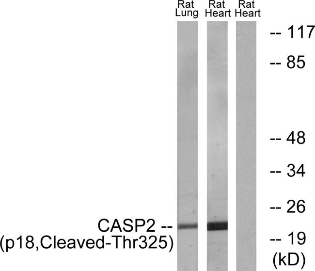 Caspase 2 p18 (Cleaved Thr325) Antibody (PA5-39872)
