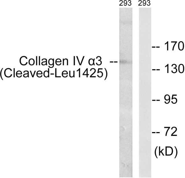 COL4A3 (Cleaved Leu1425) Antibody (PA5-39876)