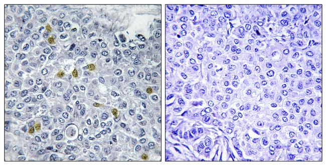 Phospho-TOP2A (Ser1106) Antibody (PA5-40159) in Immunohistochemistry (Paraffin)