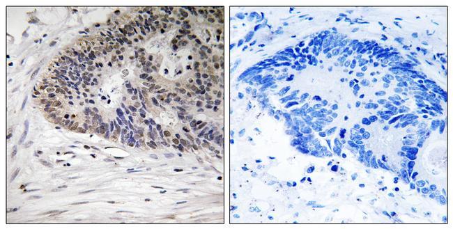 Phospho-MDMX (Ser367) Antibody (PA5-40175) in Immunohistochemistry (Paraffin)