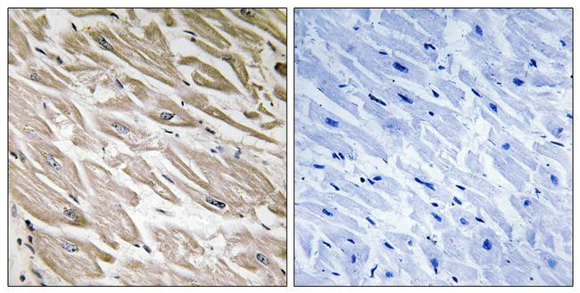 Phospho-PPP1R2 (Ser121, Ser122) Antibody (PA5-40181) in Immunohistochemistry (Paraffin)