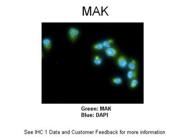 MAK Antibody (PA5-42136)