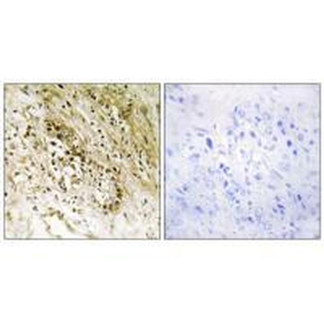 PDZD2 Antibody (PA5-49762) in Immunohistochemistry (Paraffin)