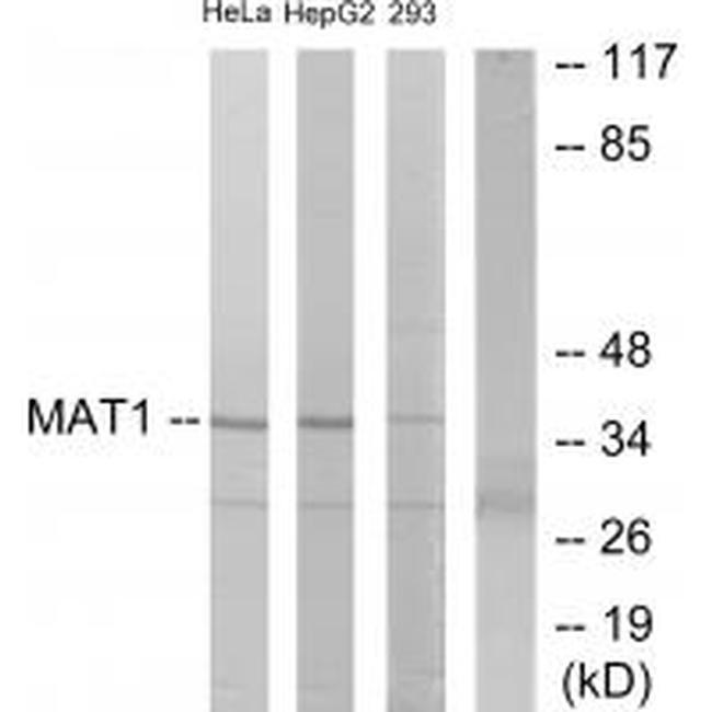 MNAT1 Antibody (PA5-49811) in Western Blot
