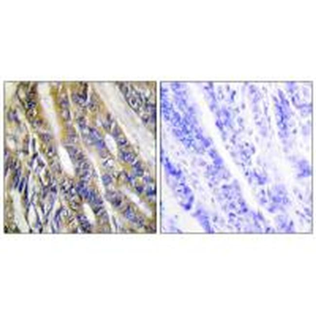 DGKH Antibody (PA5-49844) in Immunohistochemistry (Paraffin)