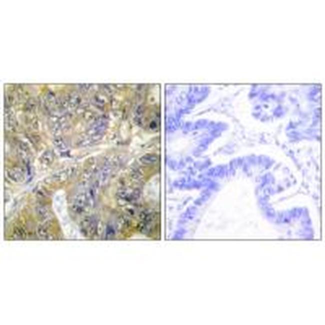 EPS8L3 Antibody (PA5-49855) in Immunohistochemistry (Paraffin)