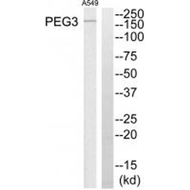 PEG3 Antibody (PA5-49876) in Western Blot