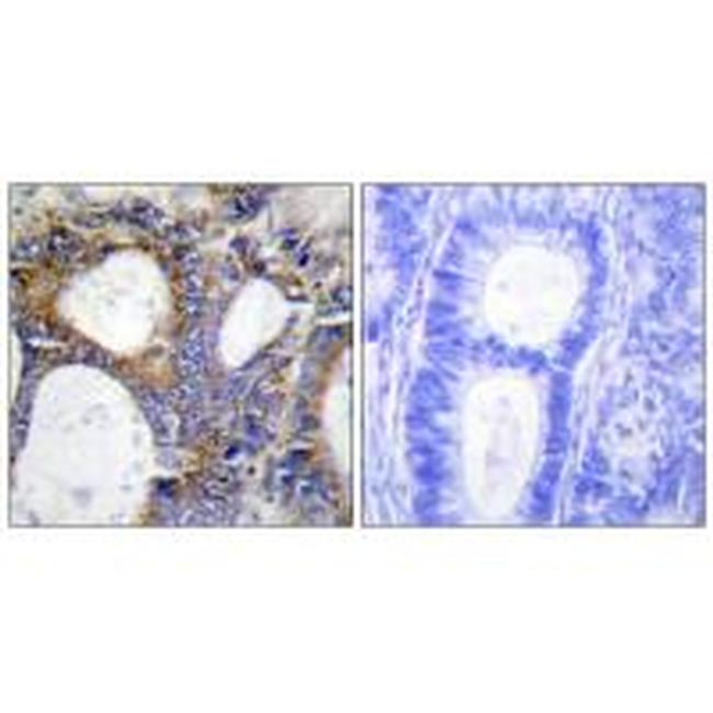 COL1A2 Antibody (PA5-49912) in Immunohistochemistry (Paraffin)