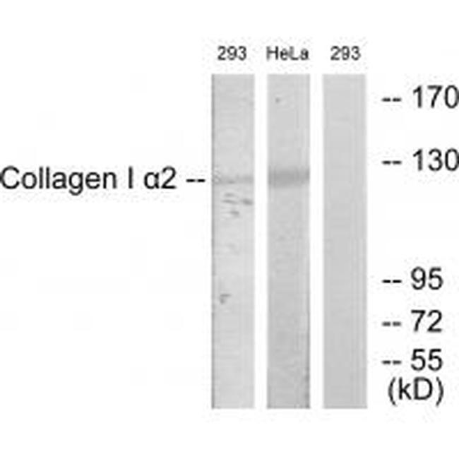 COL1A2 Antibody (PA5-49912) in Western Blot