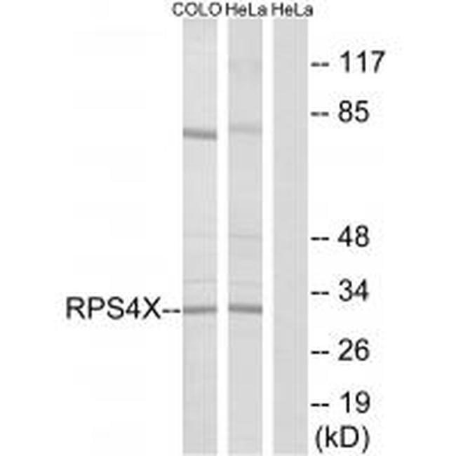 RPS4X Antibody (PA5-49949) in Western Blot