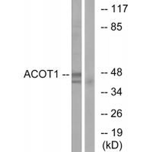 ACOT1 Antibody (PA5-49967) in Western Blot