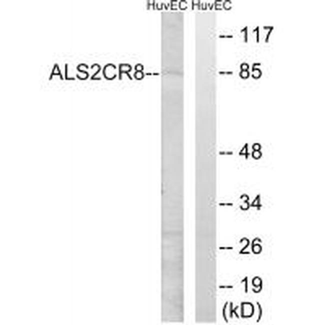 CARF Antibody (PA5-49978) in Western Blot