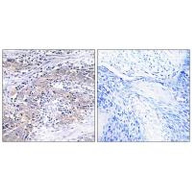 CLN6 Antibody (PA5-50006) in Immunohistochemistry (Paraffin)