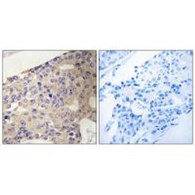 PEX10 Antibody (PA5-50085) in Immunohistochemistry (Paraffin)