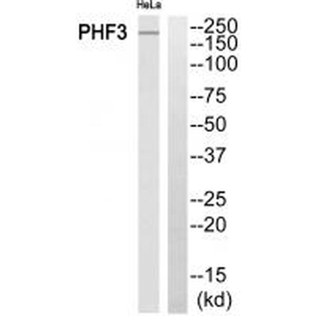 PHF3 Antibody (PA5-50087) in Western Blot
