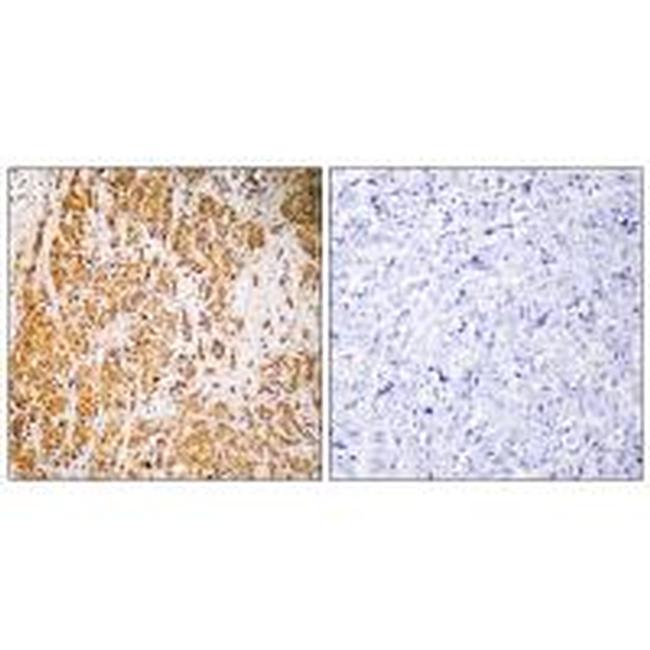 ZNF50 Antibody (PA5-50165) in Immunohistochemistry (Paraffin)