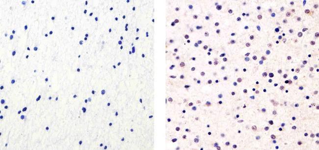 Cyclin E Antibody (PA5-16237) in Immunohistochemistry (Paraffin)