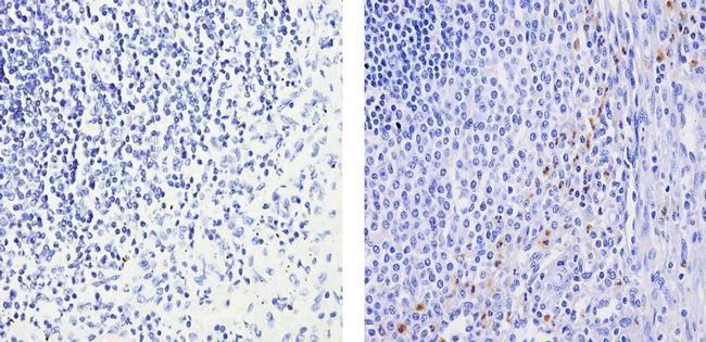 MMP9 Antibody (PA5-16509) in Immunohistochemistry (Paraffin)