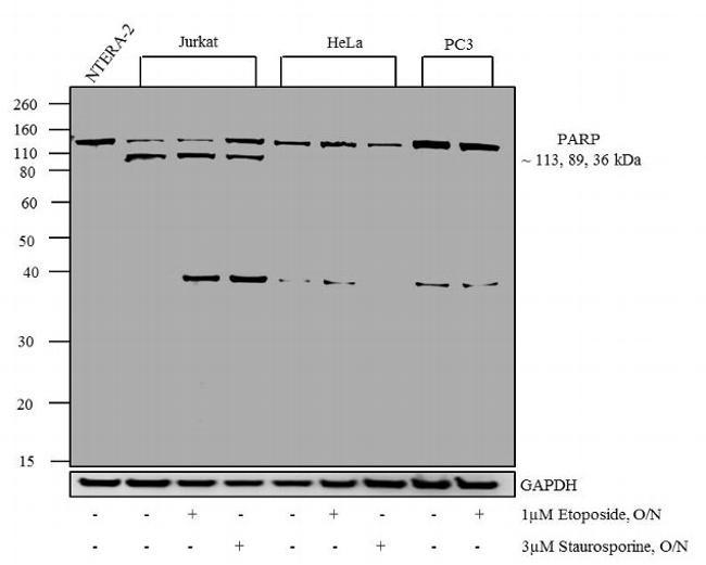 PARP Antibody (PA5-16561) in Western Blot