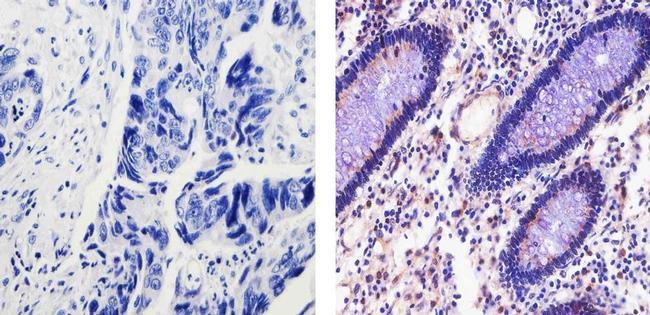 Cyclin D1 Antibody (PA5-16607) in Immunohistochemistry (Paraffin)