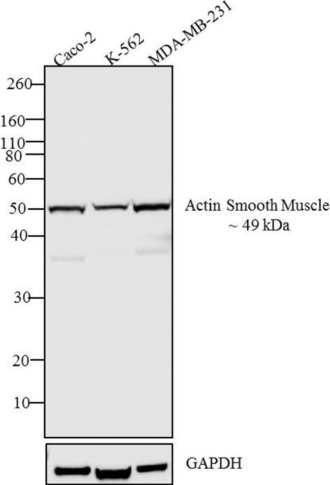 Smooth Muscle Actin Antibody (PA5-16697) in Western Blot