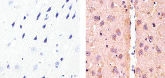 alpha Synuclein Antibody (PA5-16738) in Immunohistochemistry (Paraffin)