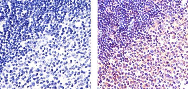 NFkB p65 Antibody (PA5-16758) in Immunohistochemistry (Paraffin)