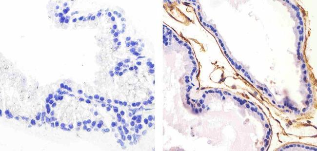 Pan-cadherin Antibody (PA5-16766) in Immunohistochemistry (Paraffin)