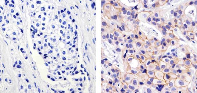 ErbB2 Antibody (PA5-16774) in Immunohistochemistry (Paraffin)