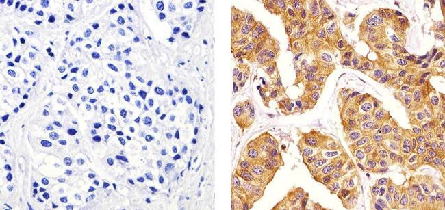 beta Tubulin Antibody (PA5-16863) in Immunohistochemistry (Paraffin)
