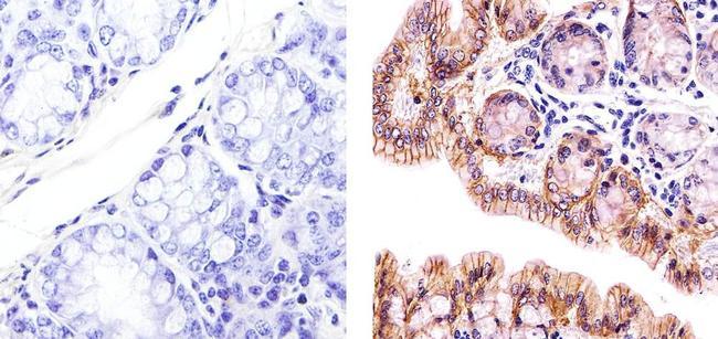 Claudin 3 Antibody (PA5-16867) in Immunohistochemistry (Paraffin)